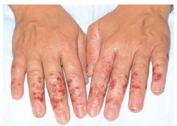 hand hygiene increases incidence of dermatitis among