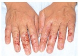 Hand hygiene increases incidence of dermatitis among healthcare workers